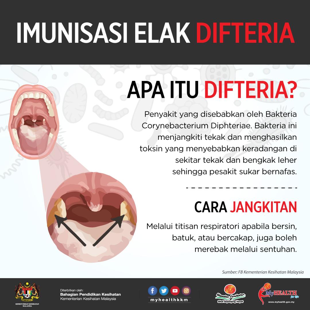 difteria infografik