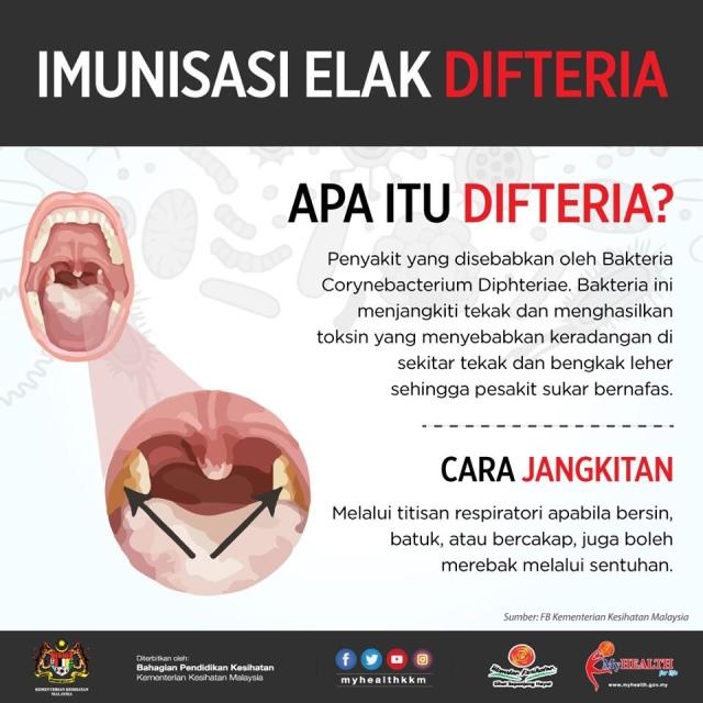 Kenyataan Akhbar Kpk 3 Mac 2019 Situasi Terkini Kejadian Penyakit Difteria Di Johor From The Desk Of The Director General Of Health Malaysia